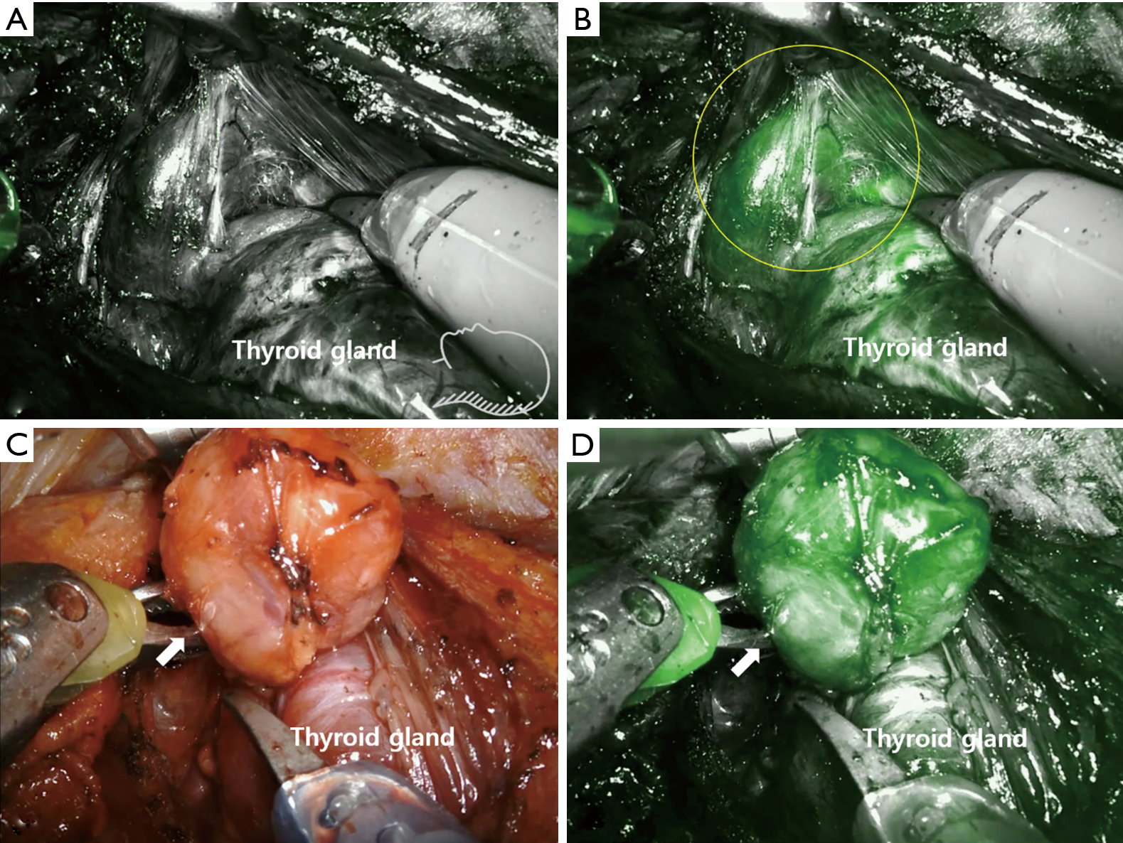 Intraoperative Real Time Localization Of Parathyroid Gland