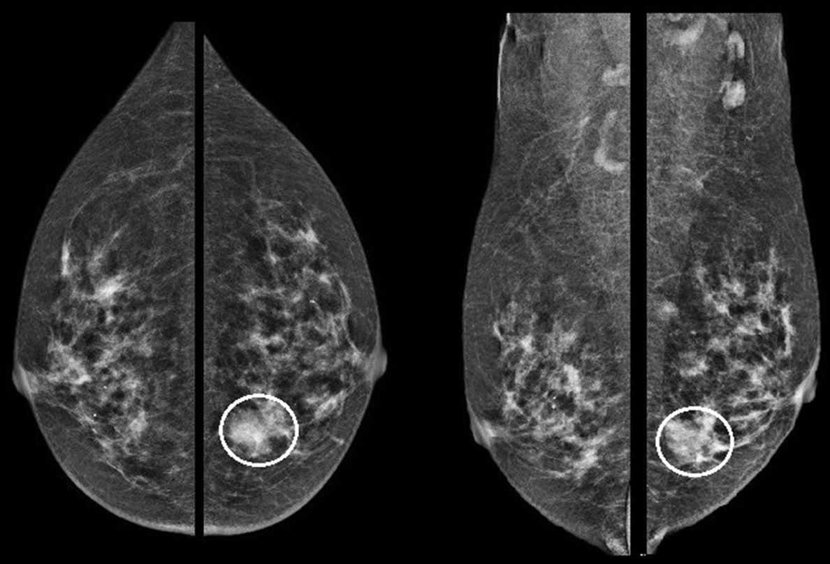 Natural History Of Metaplastic Squamous Cell Breast Cancer A Case