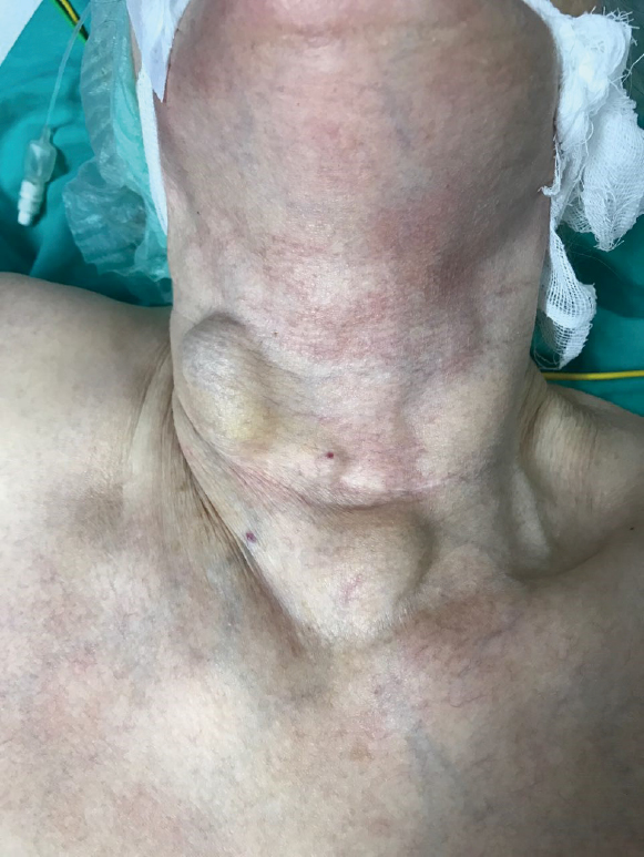 Skin Metastasis On The Neck An Unusual Presentation Of Recurrence