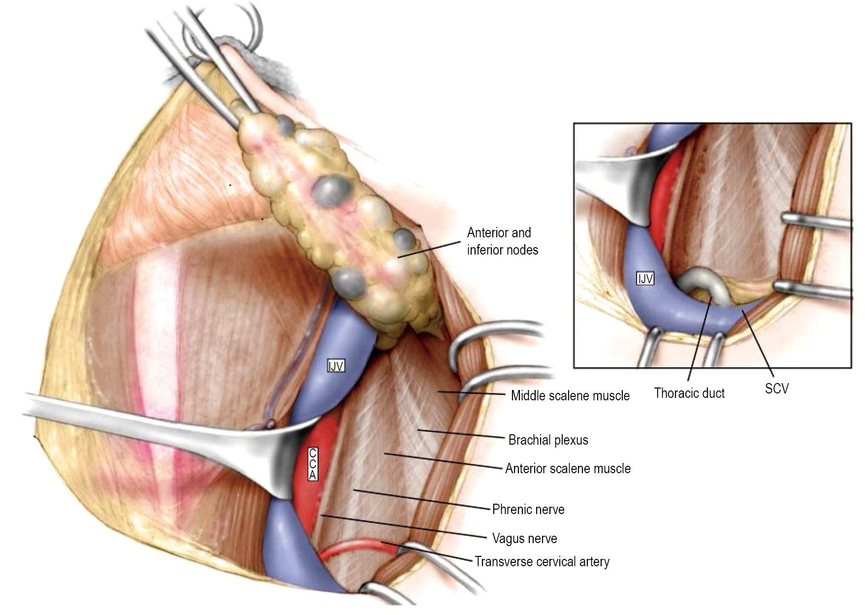 Neck dissection with cervical sensory preservation in thyroid cancer ...