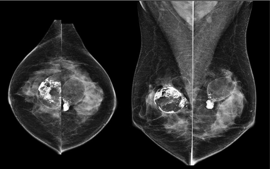 The Surgically Altered Breast Imaging Technique And