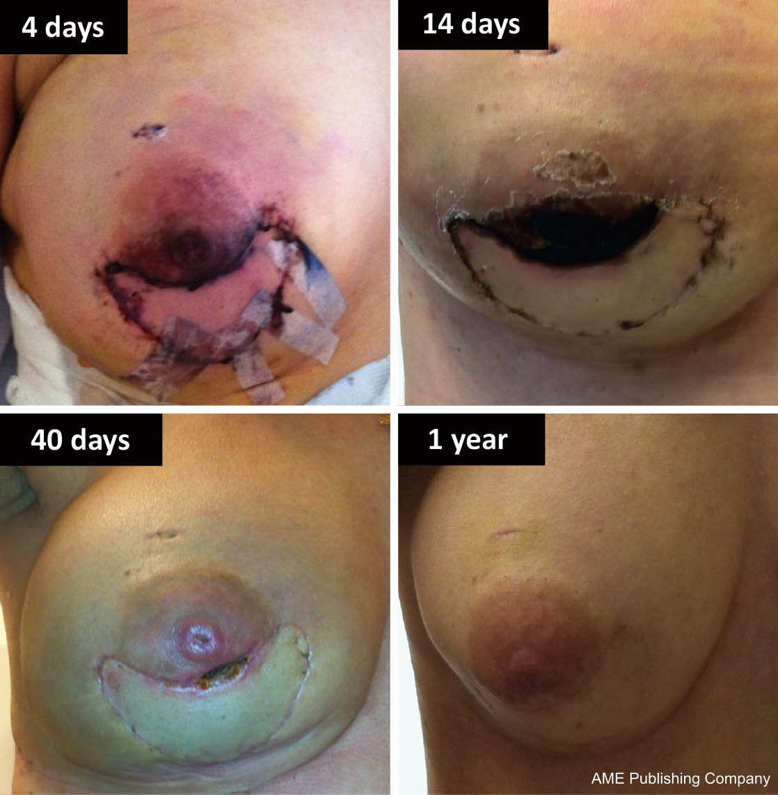 Thank Breast reconstruction necrosis