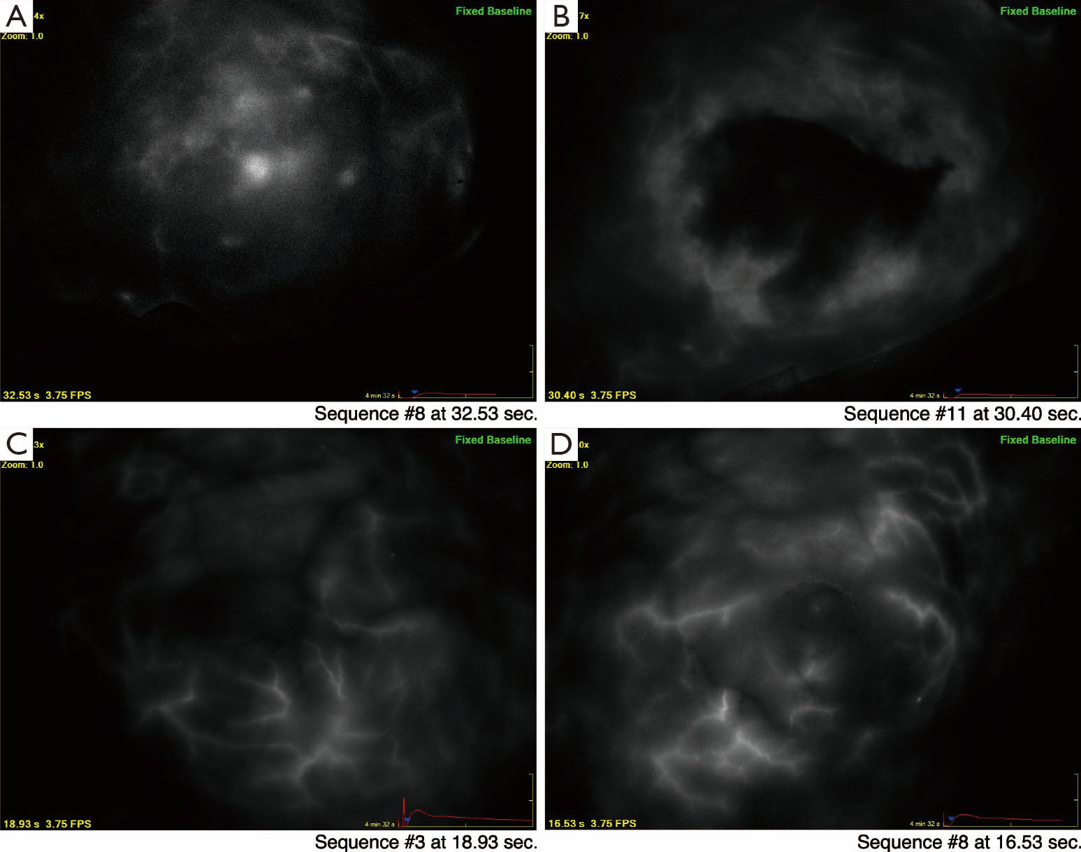 Using intraoperative laser angiography to safeguard nipple