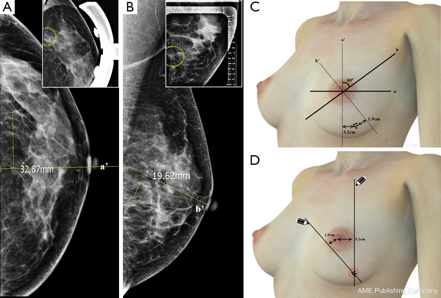 Figure 1 Non-stereotactic method for identification of the location of  breast microcalcifications. (A) Clustered microcalcifications were detected  3.2 cm ...